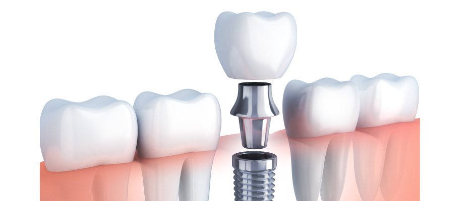 illustration of dental implant placed between teeth