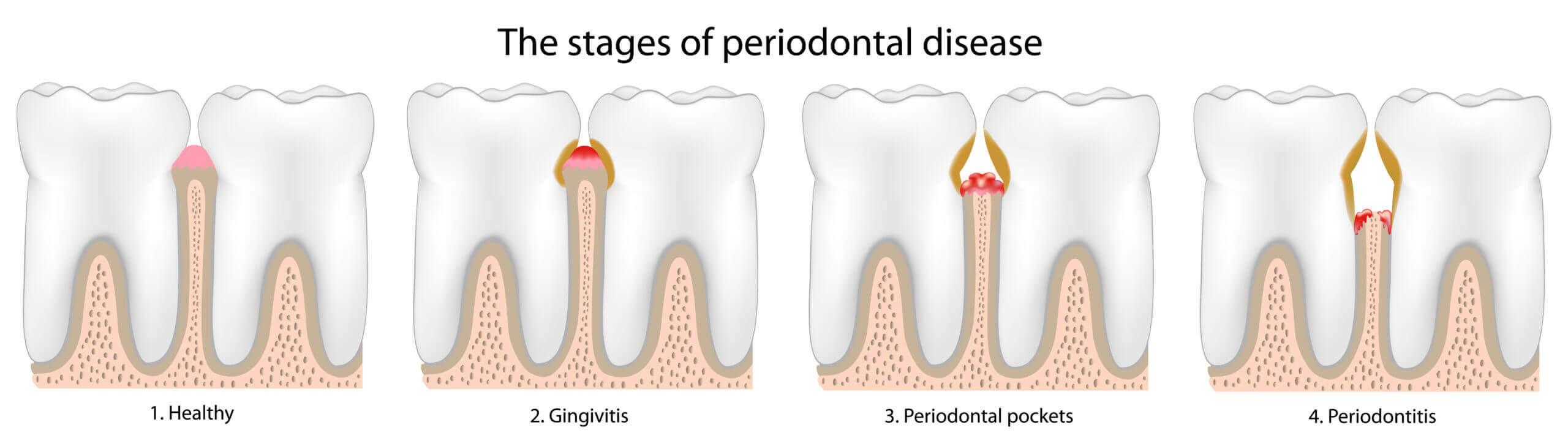 Artistic rendering describing the states of gum or periodontal disease