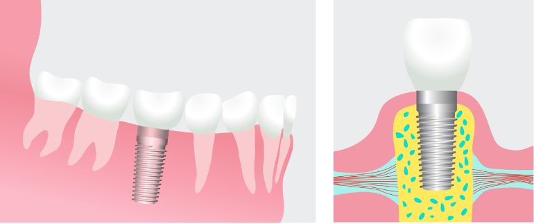 Artistic rendering of a dental implant with the titanium post in the jawbone on the left and the post topped with a dental crown on the right