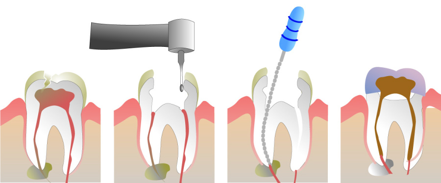 Graphic showing how a root canal is used to eliminate infection and save the natural tooth.