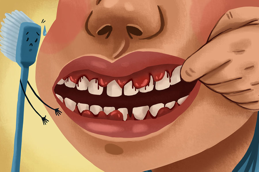 Cartoon of a mouth with bleeding gum due to gum disease.
